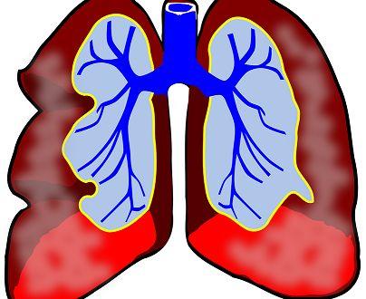10 лесни начина да облекчите дишането при астма без лекарства