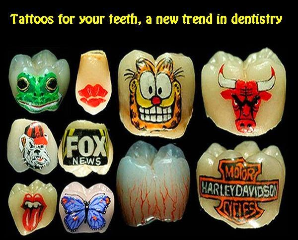 Tattoos for your teeth, a new trend in dentistry | OVI Dental