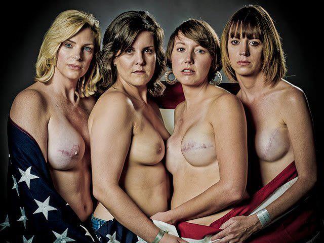 Inpactante foto de la campaña contra el cancer de mama