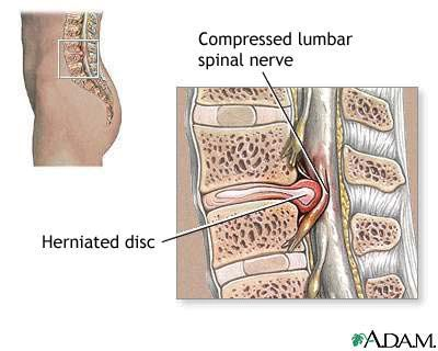 Dr Chris McNeil Chiropractor Discusses Disc Herniations