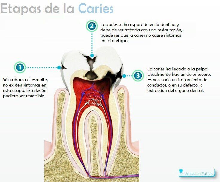 Grados de afección de los tejidos dentales por #caries dental