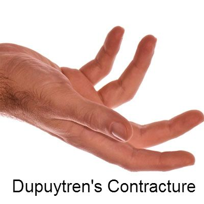 This hand deformity can cause fingers to curl inward. Get helpful facts and tips to know about Dupuytren's contracture.
