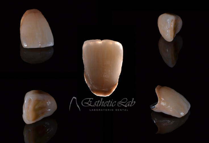For more info, visit our Facebook page http://www.facebook.com/pages/ESTHETIC-LAB-by-Noelia-Heras/337565982942013