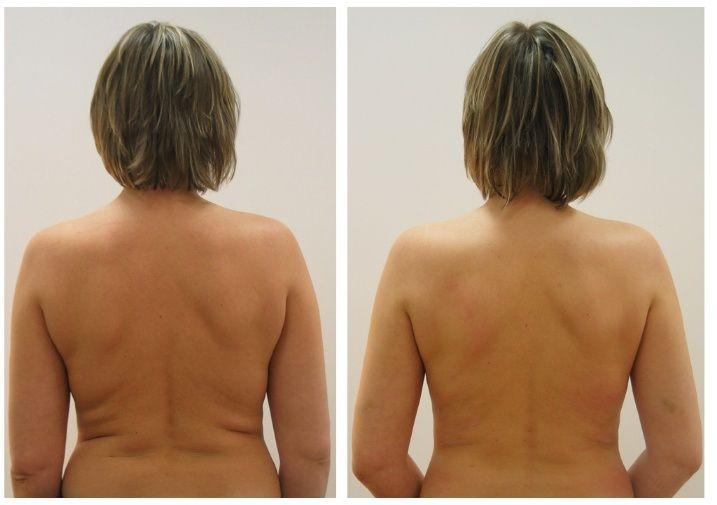 Эффективные меры по устранению жировых складок на спине