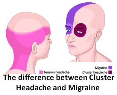 The Difference between Cluster Headache and Migraine