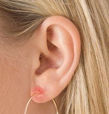 Nickel Allergy Can Cause A Nasty Infection Of The Earlobe This Is Why I