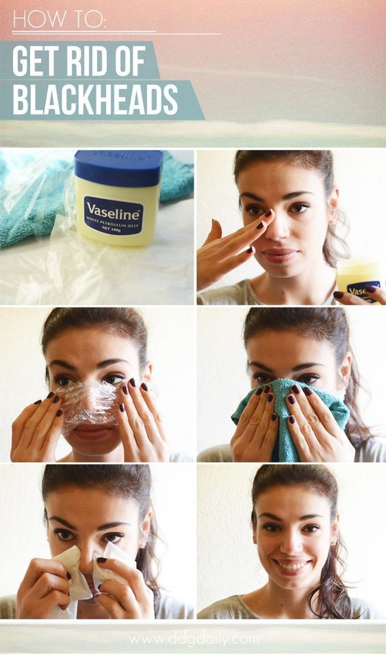 Easy Blackheads Removal TrickDIRECTIONS 1.It's best to do this once you've jumped out of the shower while your skin's temperature is higher as pores will be open. 2. Apply a thick coat of  Vaseline works 3. Cover the area with a piece of Gladwrap and apply two hot, damp washcloths for five minutes to help the area retain its heat longer and soften the pores and blackheads. 4. Once the washcloths are removed, wrap a tissue over each forefinger and gently squeeze the skin where the blackheads…