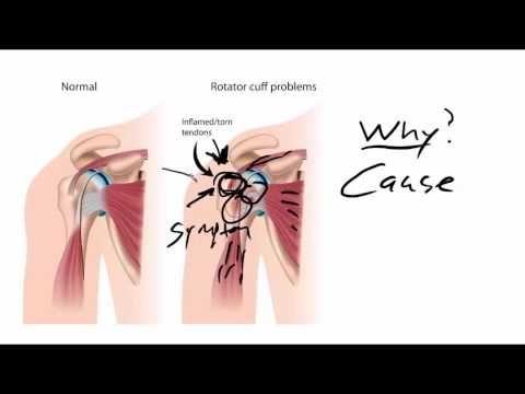 Shoulder Tendonitis, Tendonitis in Shoulder, 100% Fixable