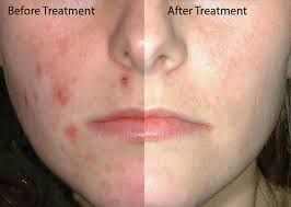 eczema  is not big  problem,  only to be dealt with wisely and in ways that simple.  https://goo.gl/seMJYX