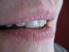 How to Get Rid of Laugh Lines: Natural Remedies to Remove Smile Wrinkles Around Mouth