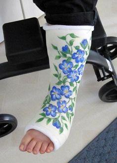 25 best ideas about broken arm cast on pinterest arm for Arm cast decoration ideas
