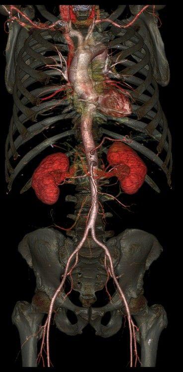 New CT Reveals Inner Structures of Body in Exquisite Detail | IFLScience