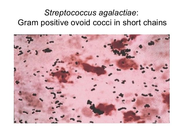 Streptococcus agalactiae (Group B strep). Beta-hemolysis, bacitracin resistant  Compare S. pyogenes (Group A Strep) - Bacitracin positive, beta-hemolysis