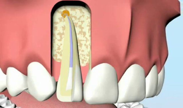 ¿La endodoncia es dolorosa? | TuOdontologa.com Blog