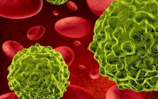 Aneta Bloguje : Amigdalina - zapomniany lek na raka