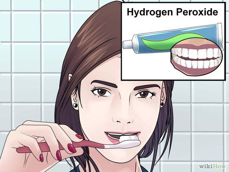 Imagem intitulada Whiten Teeth With Hydrogen Peroxide Step 1