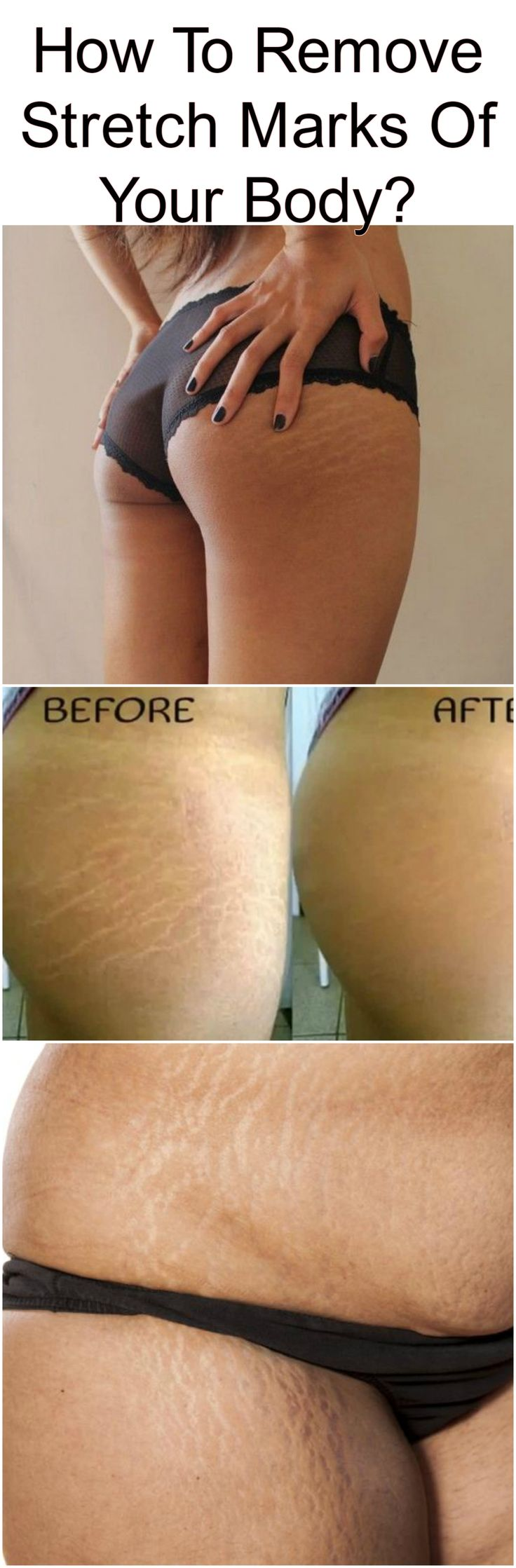#remove #stretch #marks #body #fitness