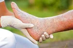 Мобильный LiveInternet Грибок на ногтях ног, лечение для пожилых. | Елена_Елена_ЕЕ -  |