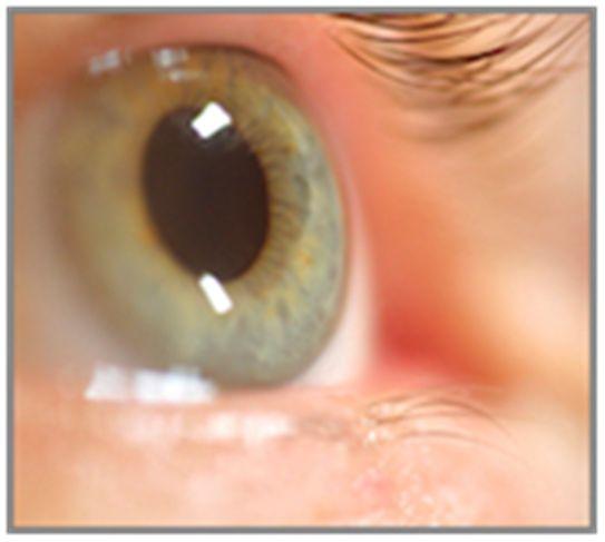 Migraine - The basics of retinal Migraine.Chronic Pain, Migraine Headache, Migraine Symptoms, Migraine Mad, Fibro Migraine, Retin Migraine, Migraine Relief, Migraine Helpful, Migraine Pain
