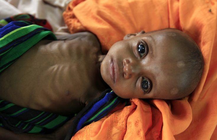 Malnourished boy in Somalia.