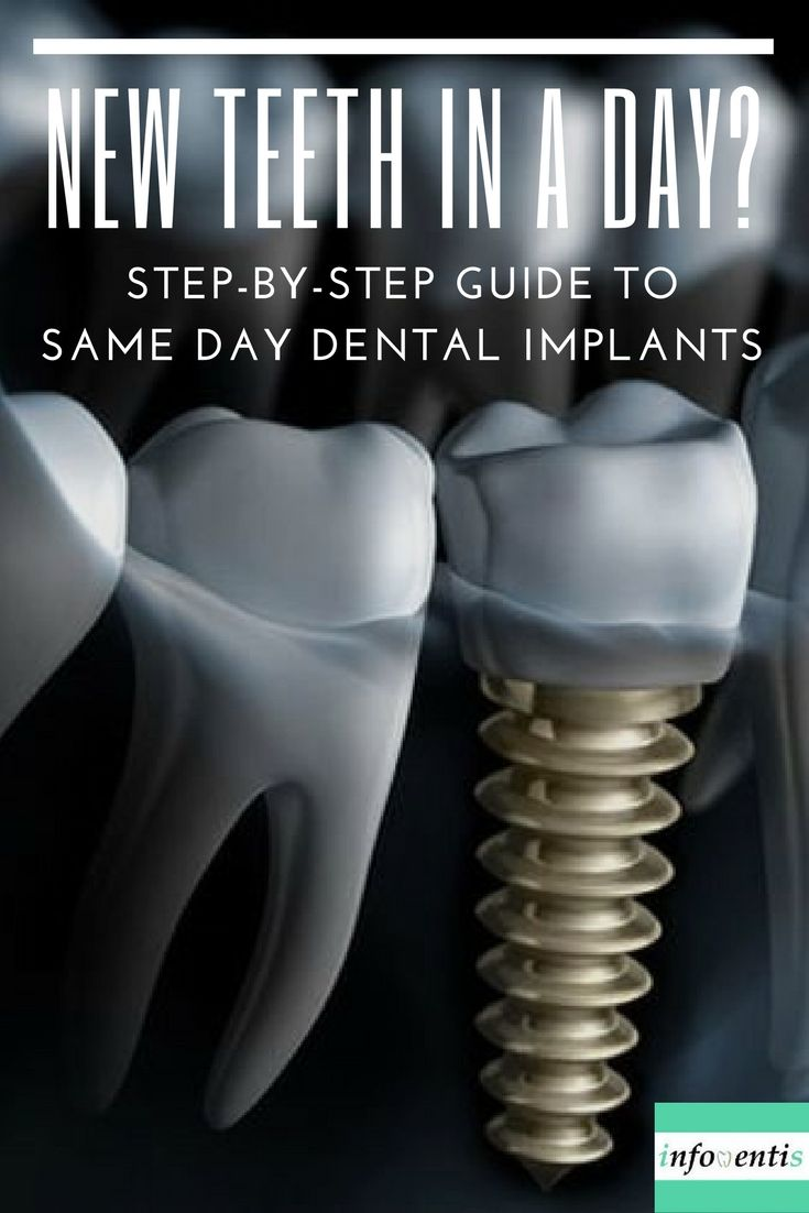 Dental implants are today's state-of-the-art tooth replacement systems. However, the traditional procedure can take up to one year. Nowadays, same day dental implants are becoming far more common: tooth removal, implant placement, and crown attachment are all performed during the same visit. But are immediate implants a viable solution? Check out the risks and benefits of same day dental implants vs traditional implants.