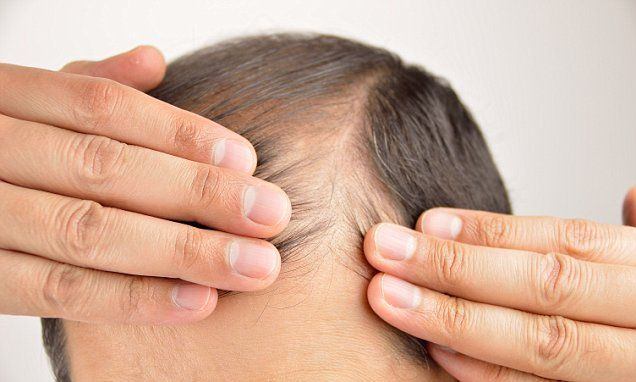 Testing mice, scientists from the University of California at San Francisco showed how certain cells in the skin send out signals that stimulate hair follicles to regenerate.