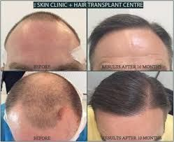 Revive Hair and Skin Clinic is the best hair transplant clinic in Essex, United Kingdom. We offer advice and treatments for hair loss problems. At Revive we offer a broad range of #hair #transplant #surgery like strip excision harvesting, and follicular unit extraction, Follicular unit transplant, Robotic hair restoration at affordable rates. Get in touch for more info.