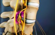 When degeneration in the cervical spine cause spinal cord compression, it's called cervical spinal stenosis with myelopathy.