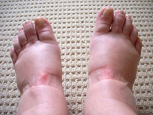 Are your feet, legs, ankles, or hands swollen? This condition is called edema, commonly known as water retention, and is manifested by buildup of fluids in the cavities, circulatory system, and the tissues. In most