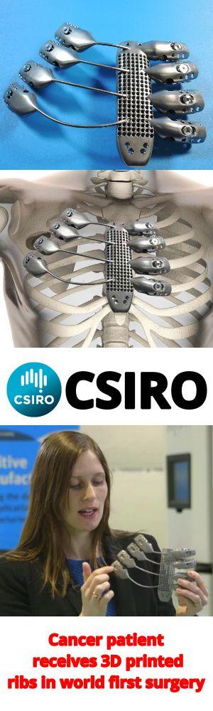 Cancer patient receives 3D printed ribs in world first surgery. Kanser hastasının tümörlü göğüs kafesi yerine titanyum göğüs kafesi nakledildi. Protez 3D yazıcı ile üretildi.