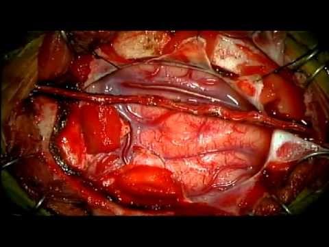 Moyamoya operation3 - YouTube