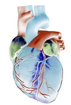 Enlarged Heart Causes, Symptoms, and Treatment  #health #healthyliving