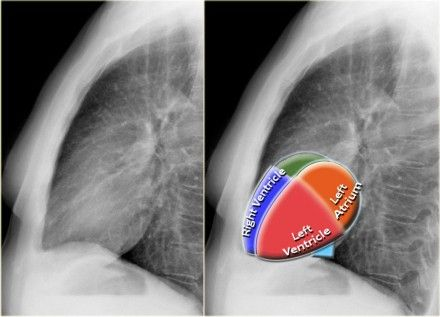 Cardiac anatomy lateral