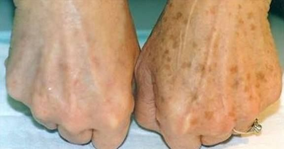 Some inflammatory processes that occur in our bodies can lead to salt deposits known as bunions. Bunions can also appear as a result of wearing tight and