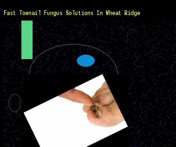 Fast toenail fungus solutions in wheat ridge - Nail Fungus Remedy. You have nothing to lose! Visit Site Now