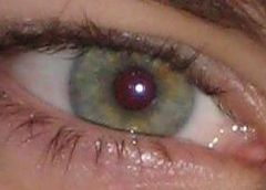 Rare eye Colors!   Green-eyes - 2% of the World's Population! That's me!