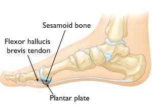 Turf Toe-OrthoInfo - AAOS