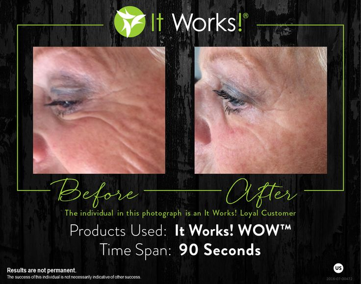 438 best it works results images on pinterest works for It works global photos