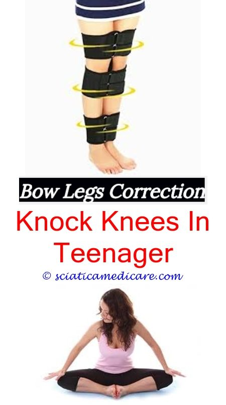 How To Treat Knock Knees Cute Bow Legged Opposite Of Bow Legged