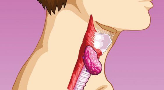 Parlons du système d'assainissement de votre corps. Saviez-vous que le système lymphatique circule, nettoie et filtre tout les déchets du sang qui restent dans le corps ? De manière surprenante, il existe trois fois plus de lymphe que de sang dans le corps. Ce système est beaucoup trop important pour ne pas apporter des informations …