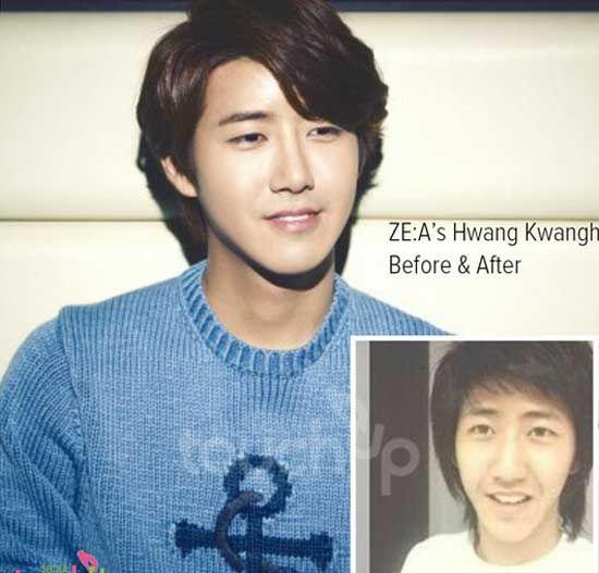Plastic Surgery Magazine | Kwang Hee Plastic Surgery | http://plasticsurgerymagz.com