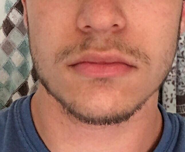 18 bartwuchs mit Bartwuchs
