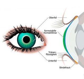 Harte Kontaktlinsen sind meist besser verträglich als weiche und eignen sich auch für trockene Augen. Vor- und Nachteile formstabiler Kontaktlinsen.