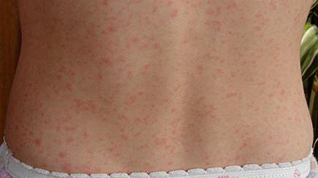 Rheumatic fever rash