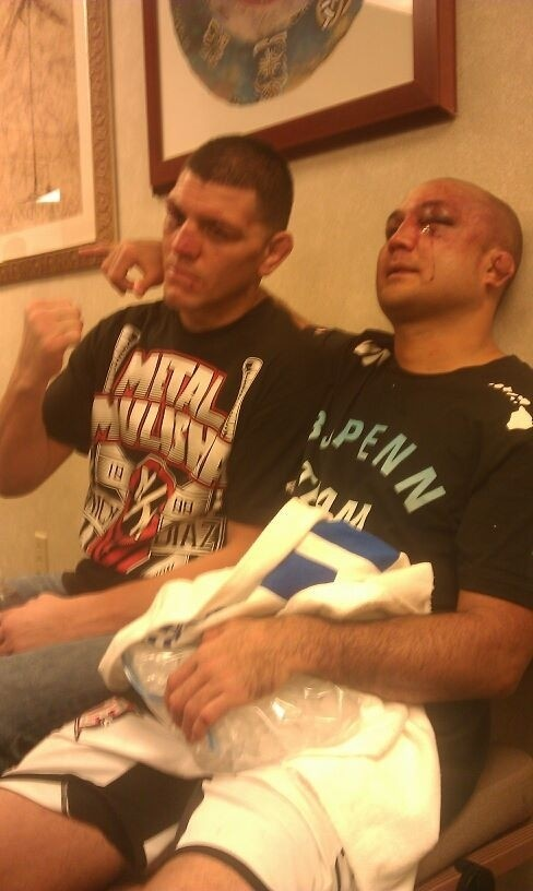 Nick Diaz and BJ Penn show off their battle wounds and mutual respect following their bout at UFC 137.