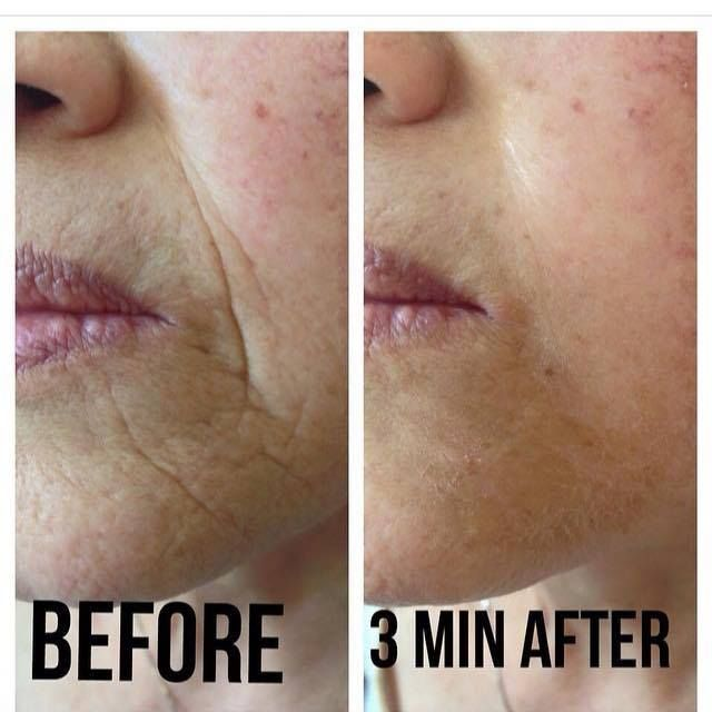 Wow! Crazy results in 3 minutes! http://www.vivre121.jeunesseglobal.com/products.aspx?p=INSTANTLY_AGELESS