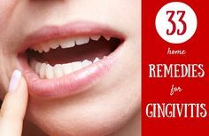 How to get rid of gingivitis fast and find a cure right in your home. All these gingivitis home remedies will come in handy in your pain hard times. You will learn how to brush your gums properly, how to use mouthwash, how to make a marigold, thyme infusion and so on for gingivitis.