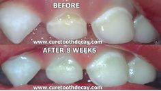 Tooth decay is not caused by bacteria, and that is why brushing and flossing don't work too often to reverse tooth decay. Tooth cavities a sign of deficiency of fat-soluble vitamins and water soluble minerals in our diet. Changing the mineral content of your blood by changing your diet and improving your mineral absorption will, in a high percentage of people, remineralize teeth :: Image of full remineralization of child's teeth