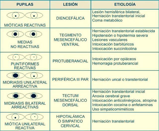 Enfermería Práctica Avanzada: Valoración de las pupilas
