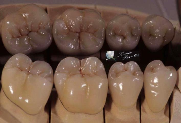 great molar anatomy